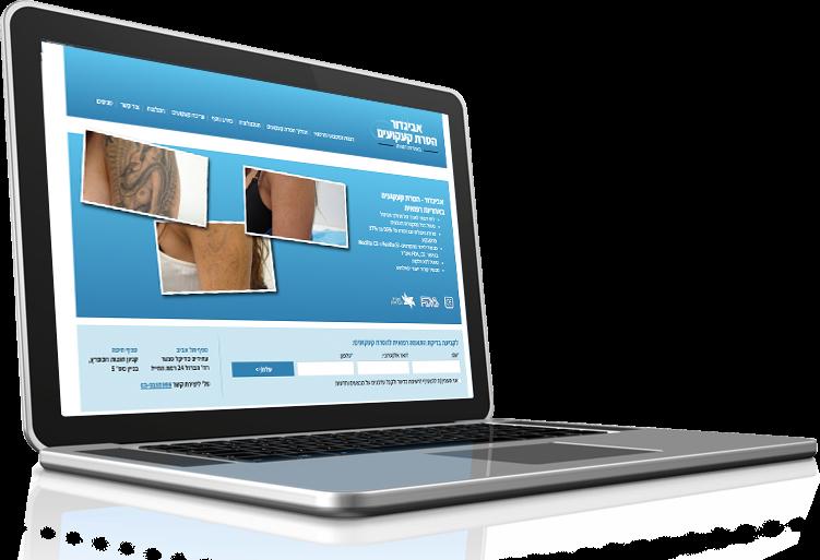 אביגדור הסרת קעקועים תמונה מיצגת לעיצוב אתר